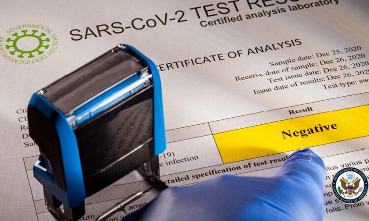 Test negativo